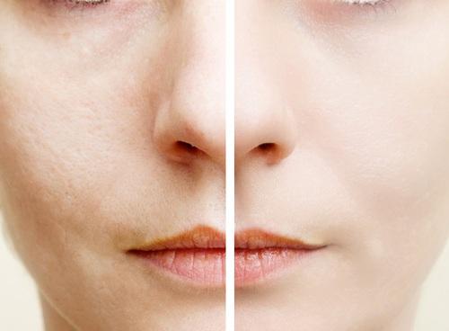 年齢毛穴は老け顔の原因に
