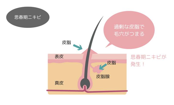 思春期ニキビの仕組み図
